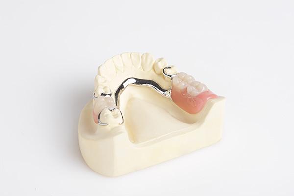 Günstige Klammerprothese von hoher Qualität | dentaltrade