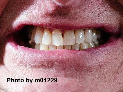 Mit 30 zähne schlechte Zahnzusatzversicherung mit